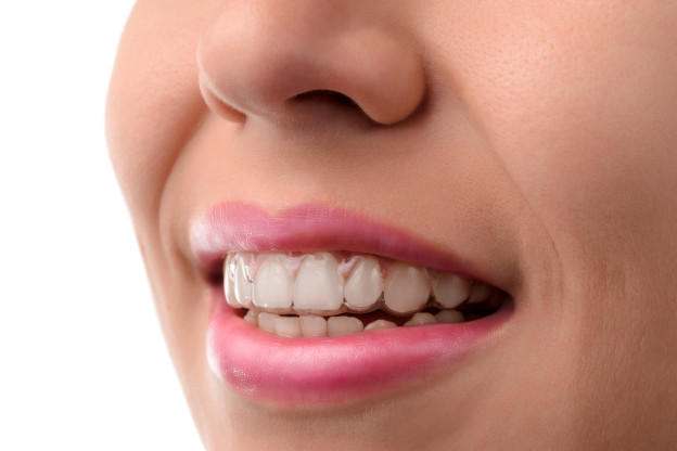 Invisalign Manchester vs Veneers – The Best Way To Straighten teeth